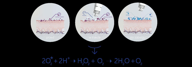grafika oczyszczanie wodorowe, a RFT cc