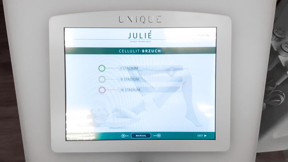 Karboksyterapia Julié wybór stadium